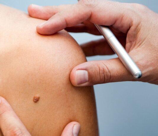 Czerniak to nowotwór skóry, którego się boimy. To nie słońce jest winowajcą! Jak chronić swoją skórę przed nowotworami?